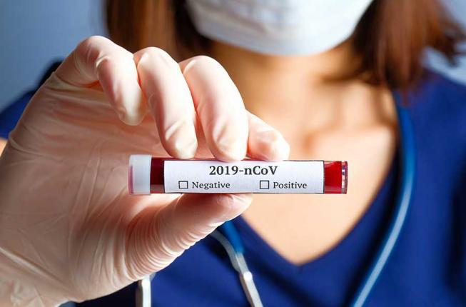 Collegamento a Coronavirus: gli aggiornamenti dell'Università di Padova